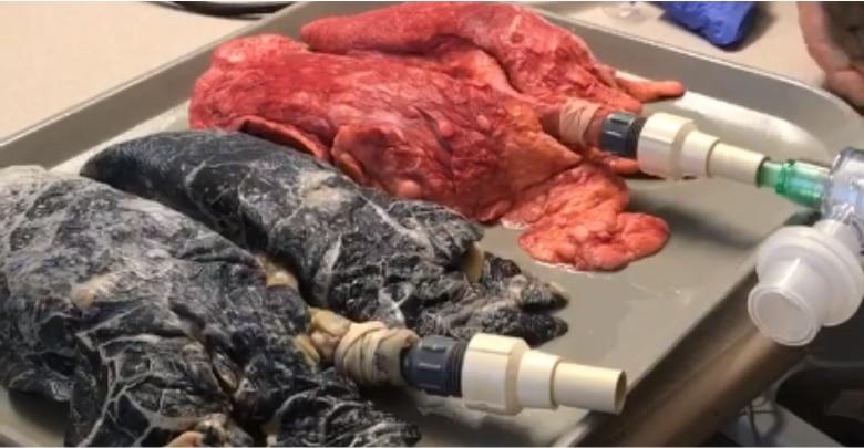 Photo of Heboh! Perawat AS Perlihatkan Video Paru-Paru Perokok dan Non-Perokok jadi Viral
